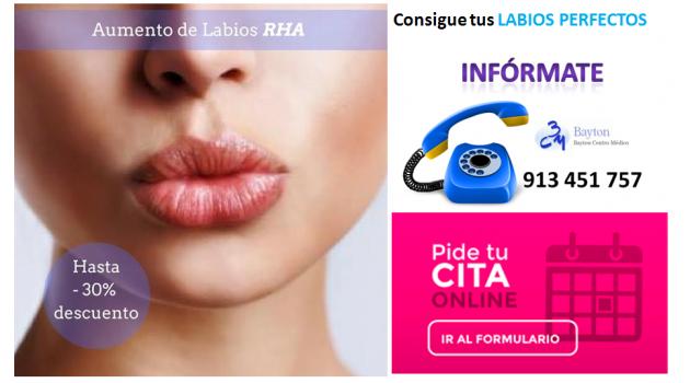 Aumento-de-labios-Madrid-con-RHA-Clinica-Bayton-Promocion