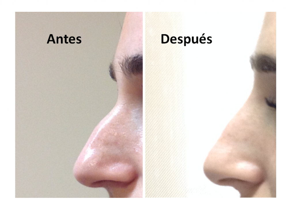 Rinoplastia-sin-cirugia-Clinica-Bayton-Madrid