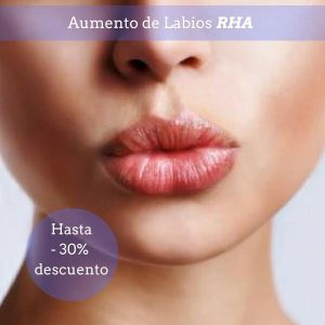Aumento-de-labios-con-RHA-Clinica-estetica-Bayton