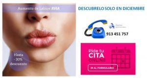 Promocion-aumento-de-labios-clinica-estetica-bayton-madrid