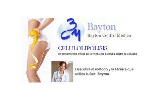 Celulolipolisis-Clinica-Bayton-Madrid