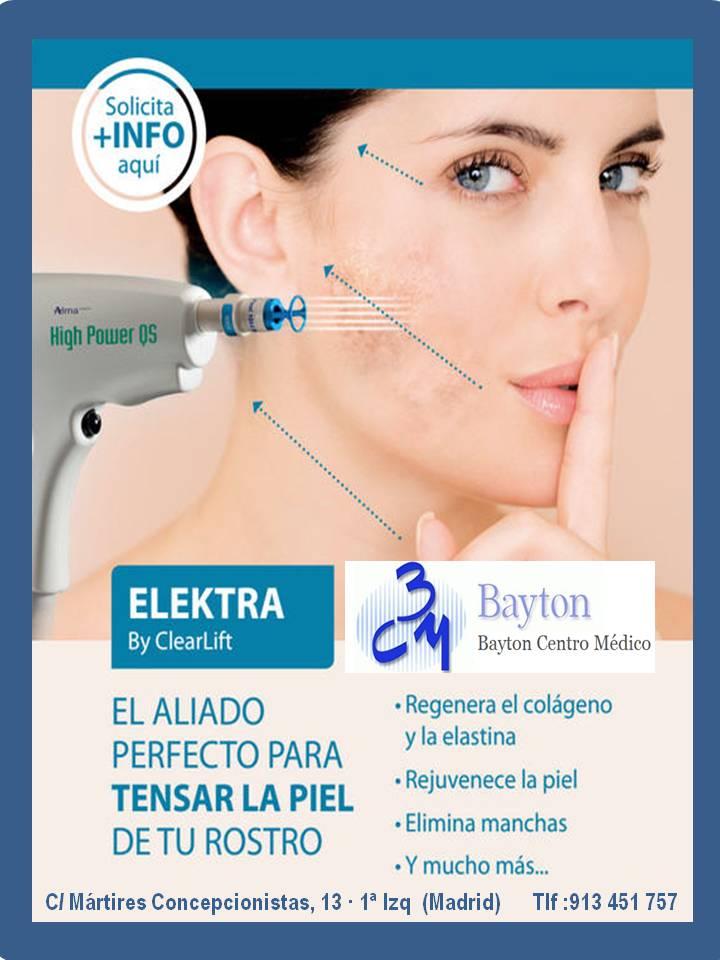Tratamiento-Laser-Electra-Clínica-Bayton