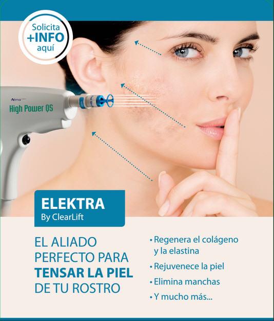 Tratamiento-Laser-Elektra-Clinica-Bayton