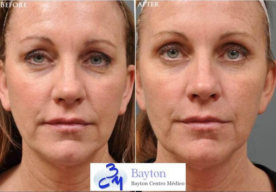 Tratamiento facial con Botox o Toxina Botulínica