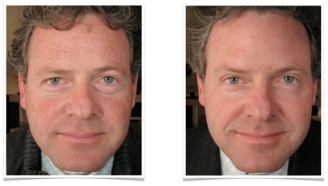 eliminar-manchas-faciales-laser