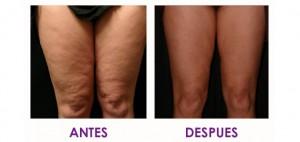 mesoterapia corporal
