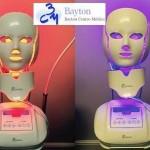Tratamiento-Ópera-Clínica-Bayton