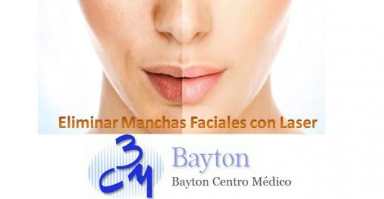 Eliminar manchas faciales con láser