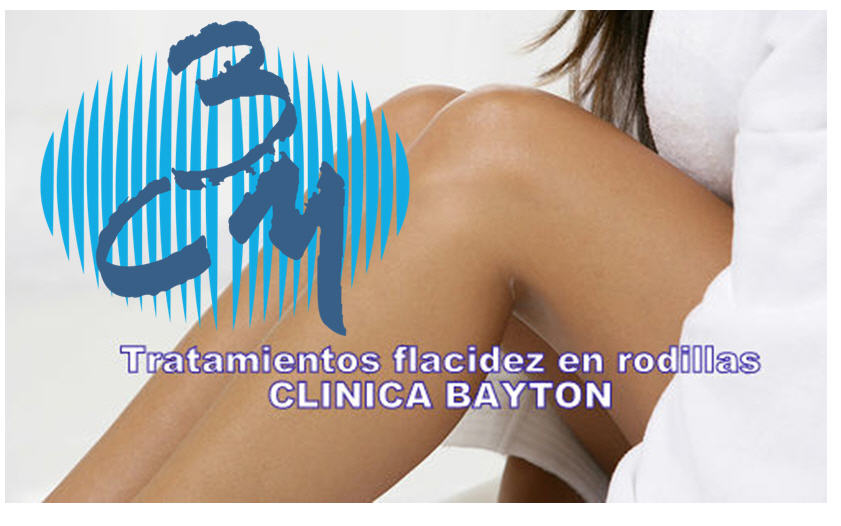 Flacidez-en-rodillas-clinica-bayton