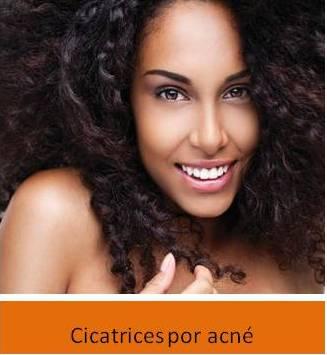 Venus-Viva-Cicatrices-por-acne