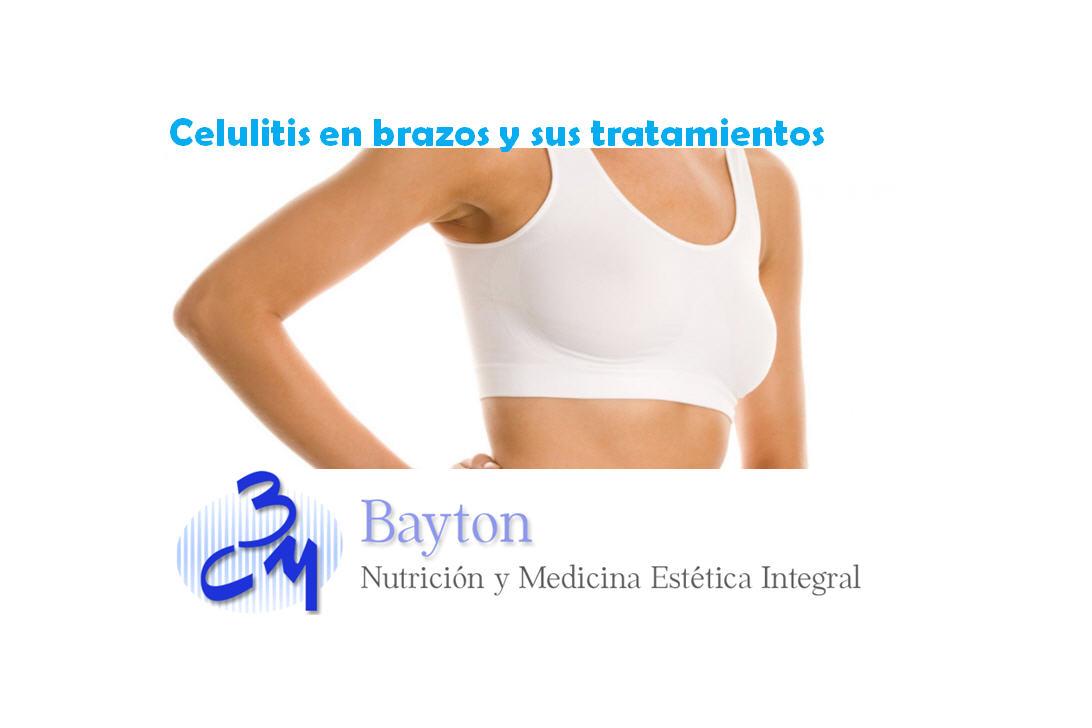 Celulitis-en-brazos-clinica-bayton-tratamientos