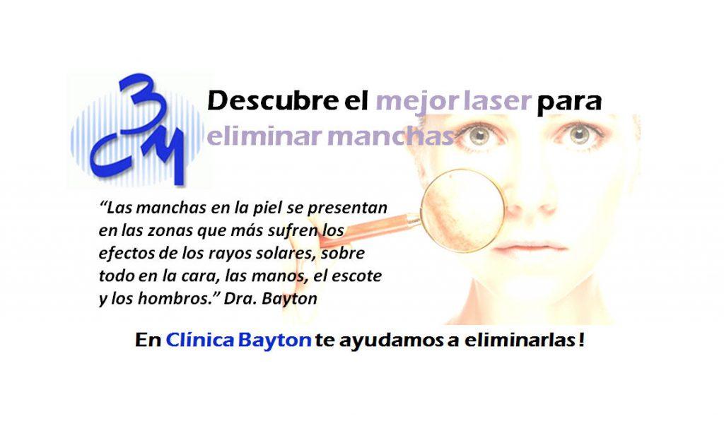 Mejor Laser Contra Manchas Clinica Bayton