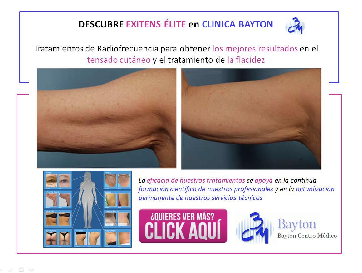 descubre-exitens-elite-en-clinica-bayton