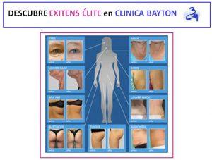 exitens-elite-clinica-bayton