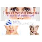Tipos de manchas cutaneas y sus tratamientos - clinica Bayton