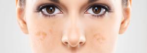 manchas cutaneas- tipos - tratamientos