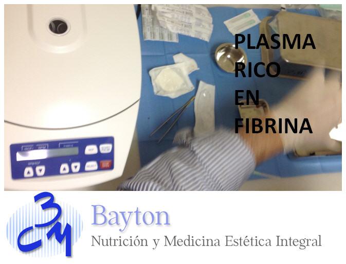 Presentacion tratamiento Plasma rico en Fibrina