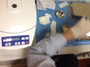 plasma rico en fibrina - Clinica Bayton - Madrid