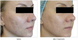 tratamiento de acne con nanofrecuencia