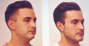 Nuevo tratamiento facial masculino - Masculook - Clinica Bayton