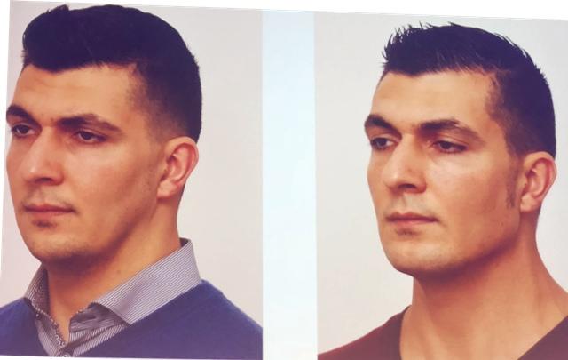 Tratamiento facial en hombres Masculook en Clinica Bayton de Madrid