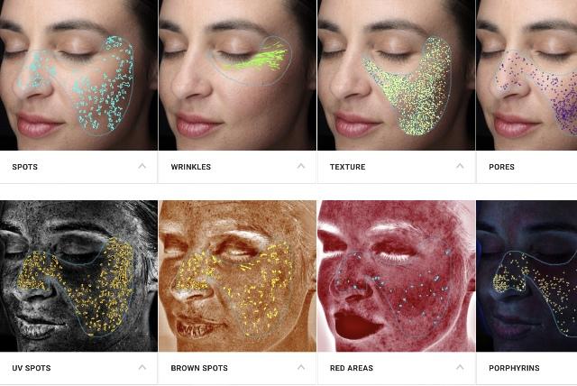 Tratamientos de la piel con Visia