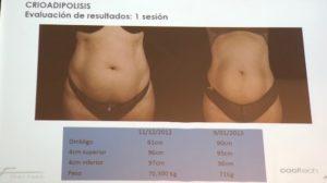Cooltech Define - Tratamiento para remodelar cuerpo