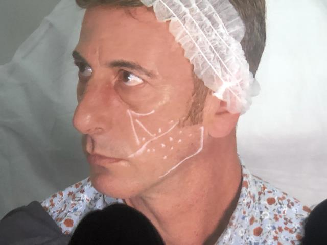 Wrokshop dr. Alessandrini - Dra. Bayton - Tecnicas de masculinizacion