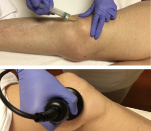 Hidrosonolipoclasia - Clinica Bayton