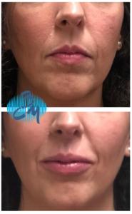 Peeling Labios Clinica Bayton - FÉRULAC DUBÁI LIPS PEEL