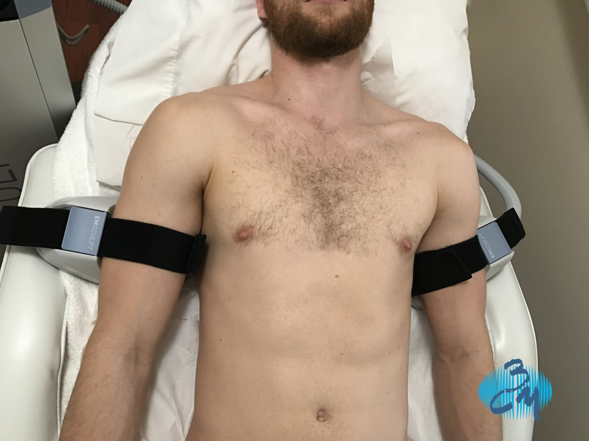 Emsculpt en brazos Clinica Bayton - Madrid