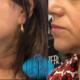 Microbotox Clinica Medicina Estetica Bayton - Madrid