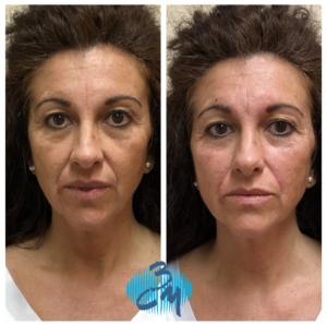 Tratamiento con Skinbooster - Clinica Bayton