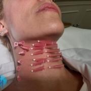 Tratamiento hilos persona joven - Clinica Bayton