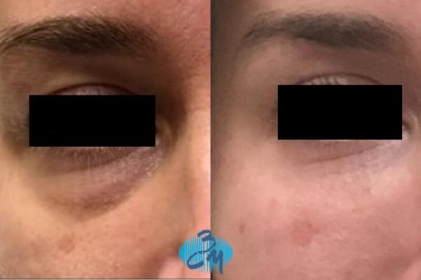 Vital light - tratamiento de las ojeras - Clinica Bayton