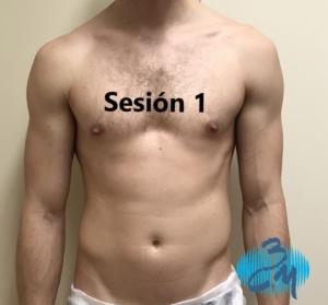 Tratamiento mejora contorno muscular 1