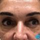 Tratamiento con hilos multifilamento - Clinica Bayton Madrid - Antes