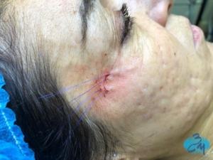 Tratamiento con hilos multifilamento - Clinica Bayton Madrid - Durante