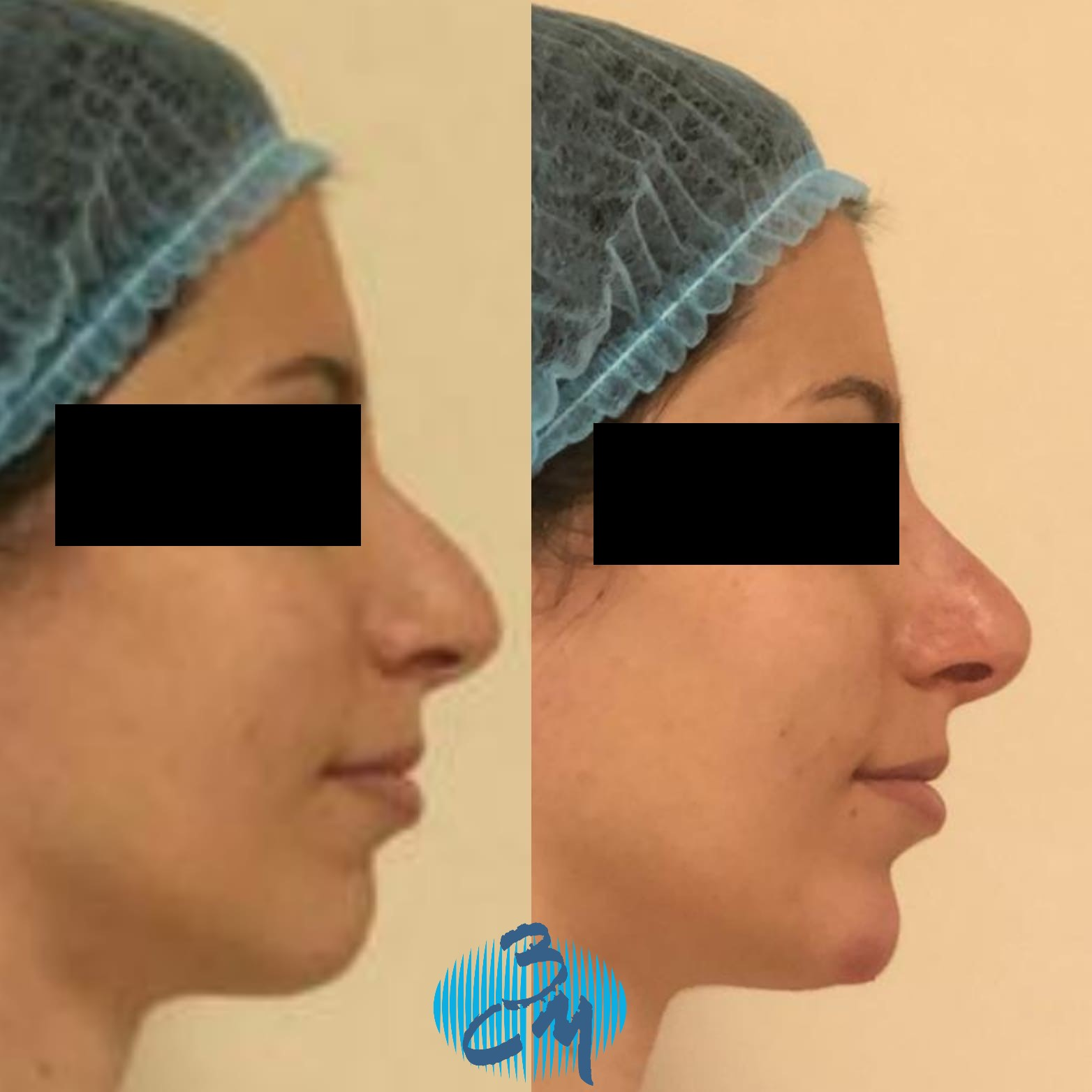 Rinomodelación sin cirugia con Ácido Hialuronico RHA4