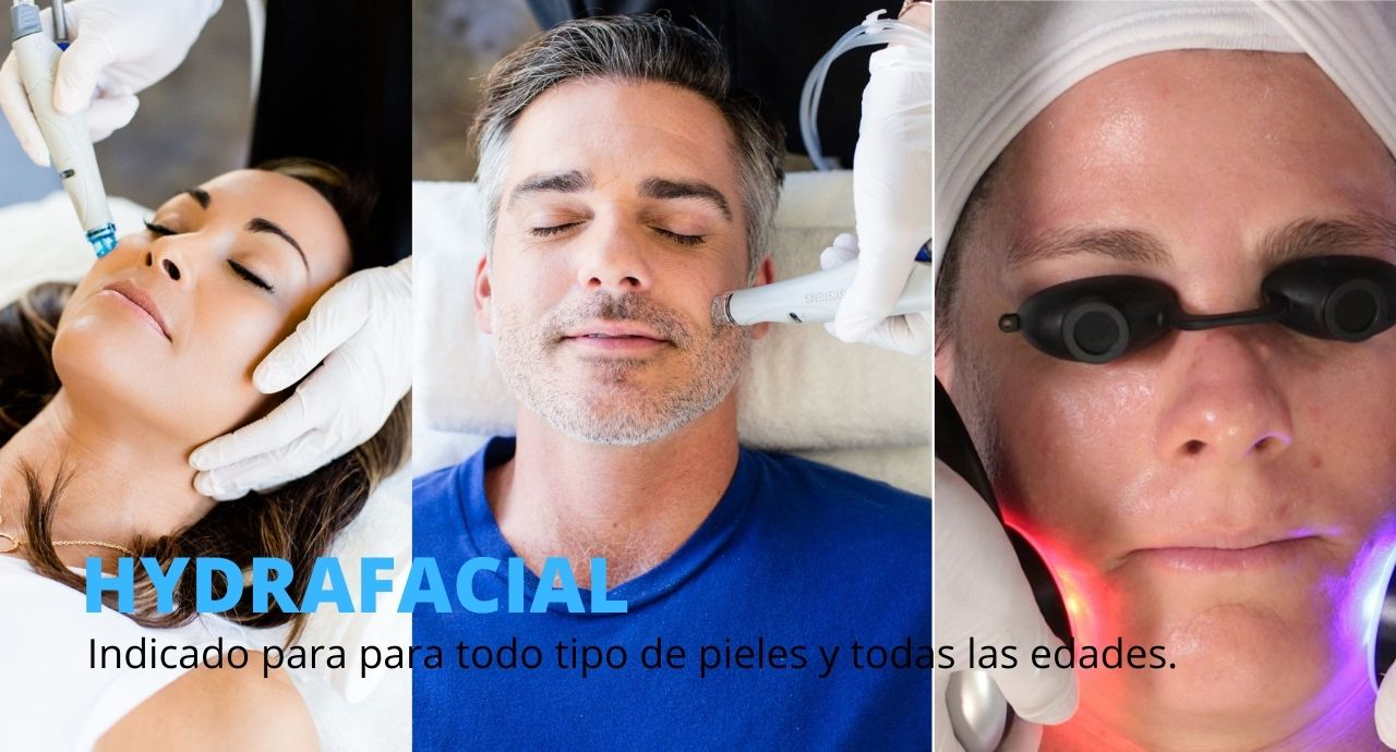 HYDRAFACIAL tratamiento piel